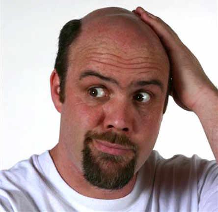 La caída de los cabello de la causa y el tratamiento a las mujeres